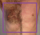 antes y despues depilación láser