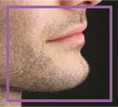 depilacion laser facial