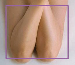 Depilación láser medias piernas