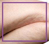 Liposucción ultrasónica para eliminar la grasa