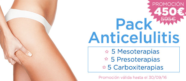 Promociones Especiales Madrid Precio