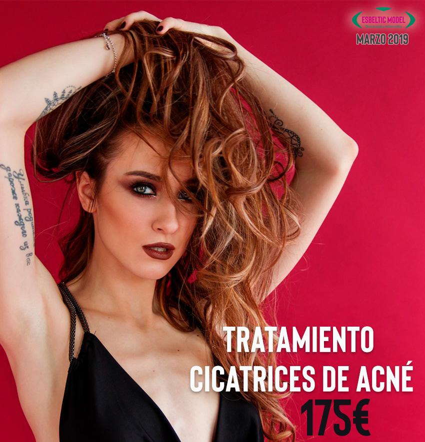Promoción Tratamiento Cicatrices de Acné Madrid Precio