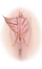 Cirugía íntima Madrid Precio