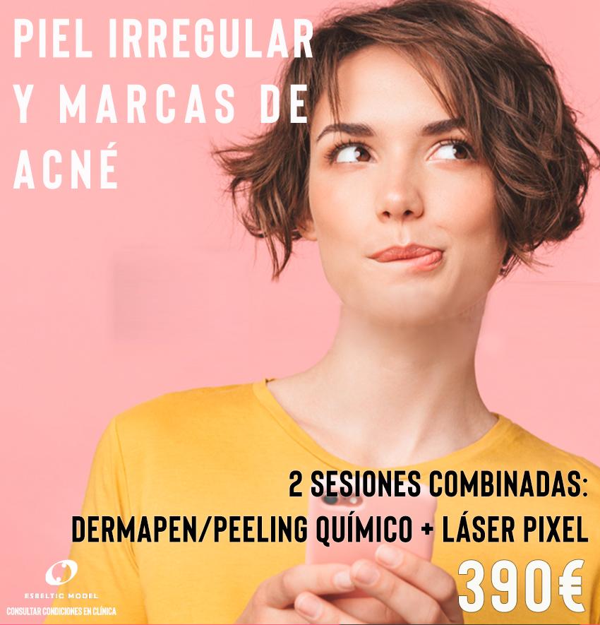 Promoción Especial para piel irregular y Marcas de acné Madrid Precio